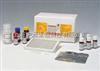 诺沃克病毒荧光定量RT-PCR检测试剂盒